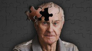 Alzheimer donne colpite più degli uomini