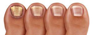 ricostruzione unghie su piedi problematici